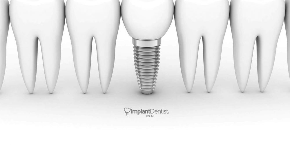 marketing-for-implant-dentists