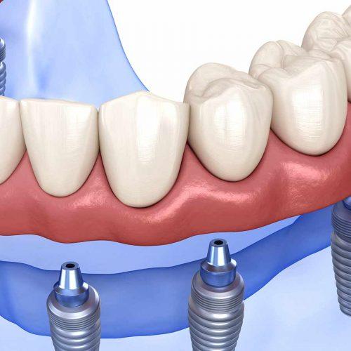 dentures-dentist-milwaukee